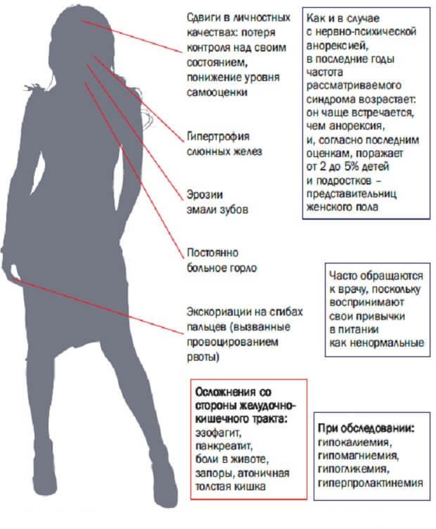 Нервная булимия: лечение, причины, препараты, признаки