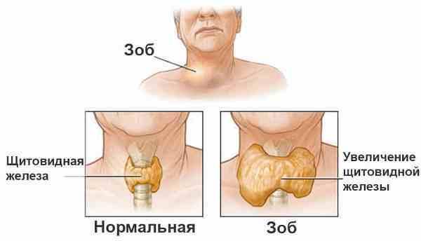 Папиллярная карцинома щитовидной железы: выживаемость, прогноз