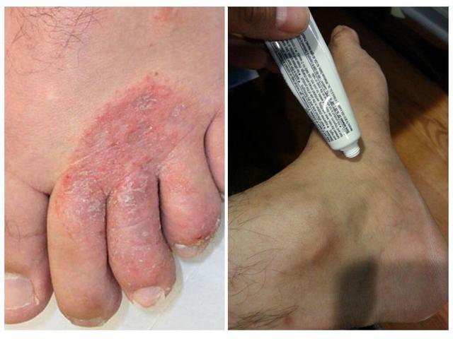 Мазь от грибка на ногах: противогрибковая, показания к применению