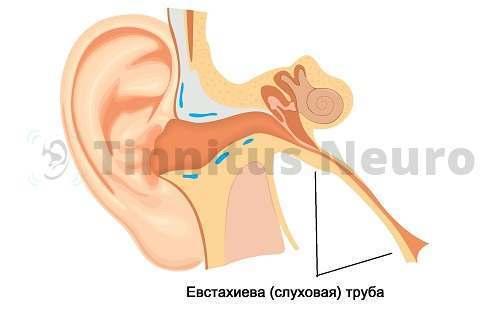 Звон в ушах: причины и лечение, постоянный, сильный