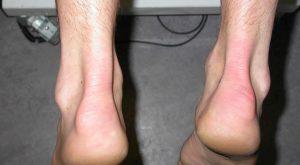 Тендинит: лечение, плечевого, коленного сустава, ахиллова сухожилия