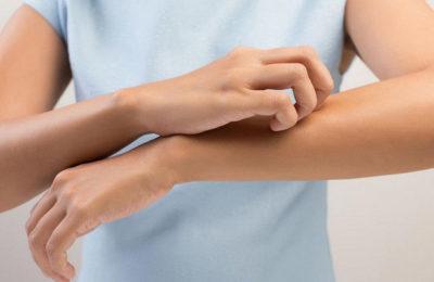 Мазь Синафлан: от чего помогает, Флуоцинолона Ацетонид