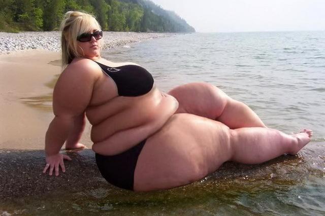 Морбидное ожирение: 3 степени, лечение, что это такое