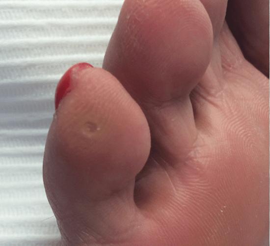 Сухая мозоль на мизинце ноги: лечение, рецепты и средства