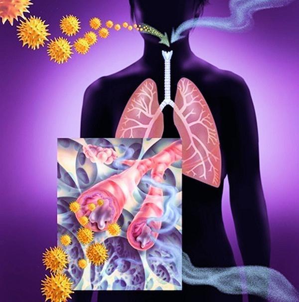 Катар верхних дыхательных путей: симптомы и лечение, что это такое