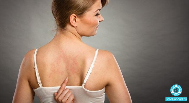 Розовые пятна на теле: не болят, не чешутся, что это может быть