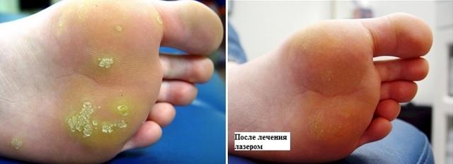 Мозоль Куриная Жолка: как лечить, на пальцах рук, лечение