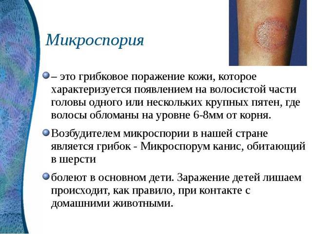Микроспория гладкой кожи: инкубационный период, сколько дней