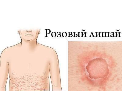 Розовый лишай: лечение, в домашних условиях, быстро