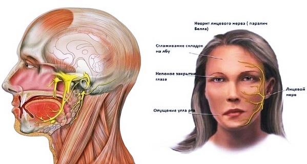 Невралгия лицевого нерва: симптомы и лечение, причины
