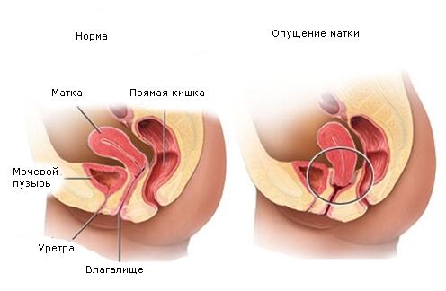 Смещение матки: влево и вправо, причины и последствия