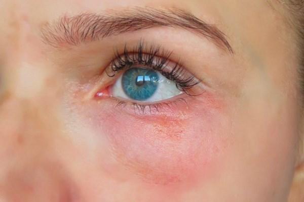 Красные пятна под глазами: причины, шелушатся, покраснение