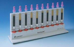 РОЭ в крови: норма у женщин, что это такое, анализ, повышенный