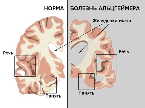 Синдром Альцгеймера: симптомы, что это такое, болезнь