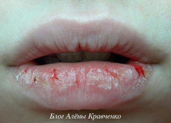 Трескается губа посередине: причины проблемы, анализы