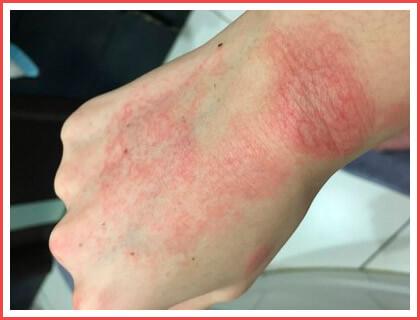 Красные пятна на руках: появились, шелушатся, чешутся
