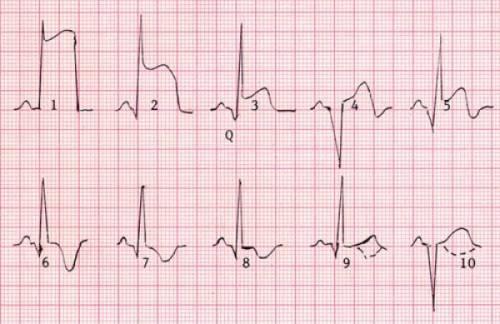 ЭКГ при инфаркте миокарда: диагностика, локализация
