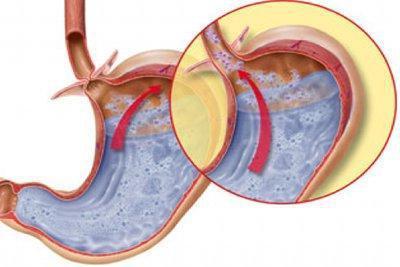 Как определить кислотность желудка: узнать самостоятельно