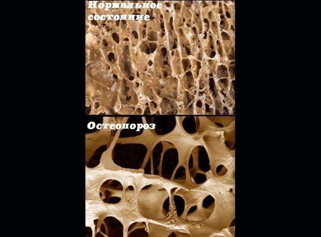 Остеопороз позвоночника: симптомы и лечение, как лечить