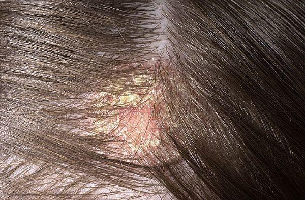 Красные пятна на голове под волосами: шелушащиеся и чешутся