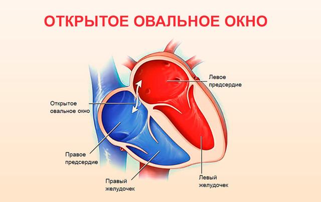 Открытое овальное окно в сердце: у взрослого, что означает