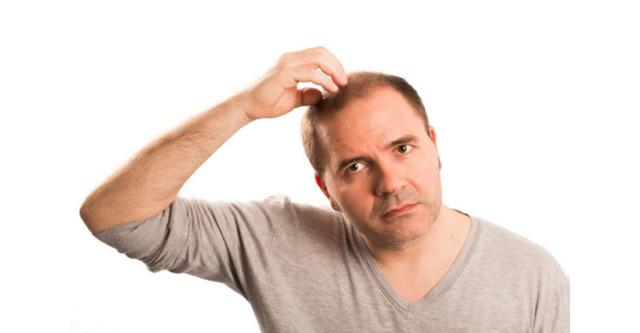 Почему мужчины лысеют: от чего, в раннем возрасте