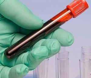 Эритроцитоз: у женщин, мужчин, вторичный, лечение