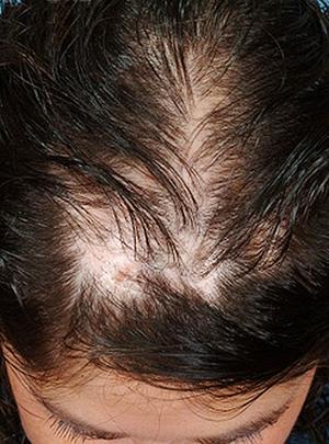 Редкие волосы на макушке у женщин: поредение