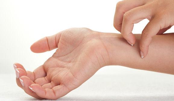 Красная сыпь на теле у взрослого: чешется, руках, ногах