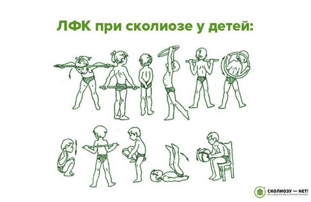Сколиоз 1 степени: массаж, грудопоясничный, упражнения