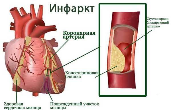 Что показывает ЭКГ: сердца, инфаркт, кардиограмма