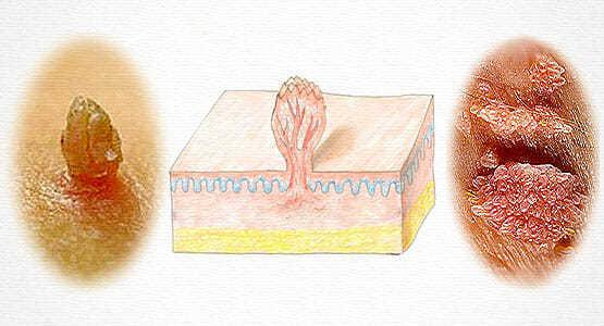 Кондиломы у женщин на малых половых губах: причины, лечение