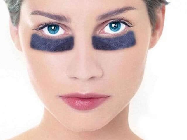 Мазь от синяков и гематом на лице: лучшая, быстродействующая
