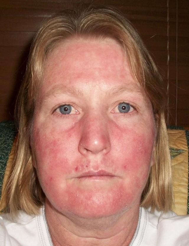 Красные пятна на лице: причины у женщин и мужчин, аллергия