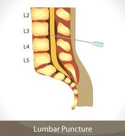 Люмбальная или спинномозговая пункция – техника выполнения, показания, противопоказания