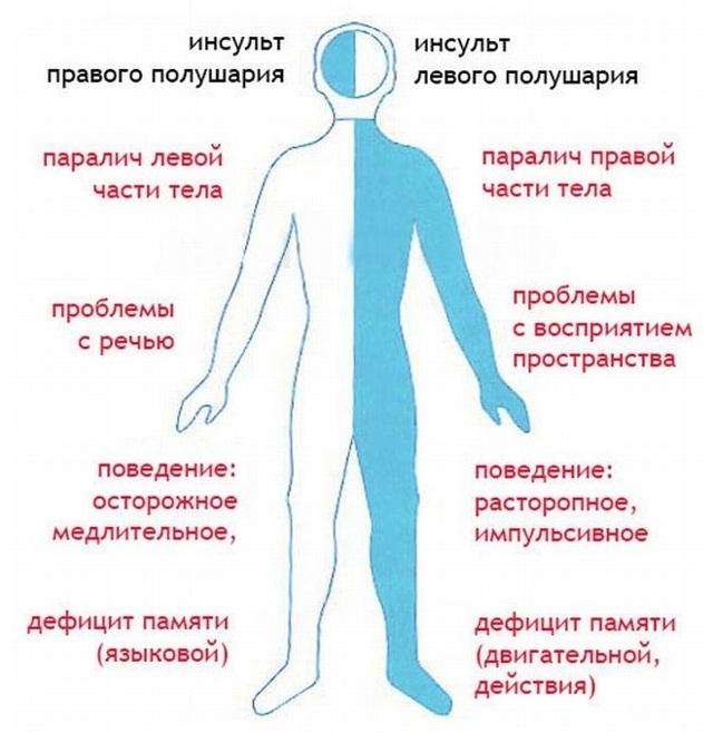Инсульт ишемический: последствия, левая сторона, левого полушария