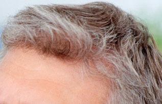 Как бороться с сединой волос у женщин: ранней, преждевременной
