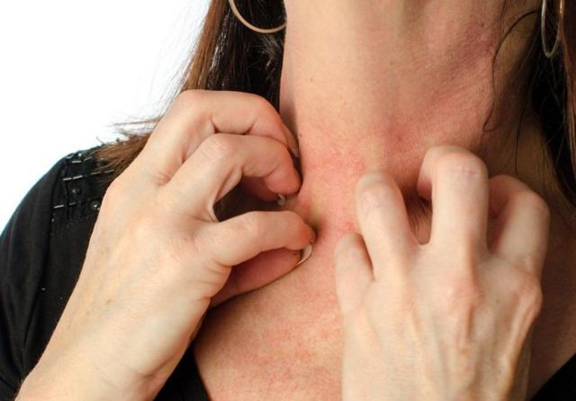 Сыпь на шее у взрослого: причины, что это, высыпания