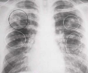 Туберкулема легких: что это такое, заразна или нет, последствия