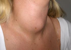 Щитовидная железа: симптомы заболевания, у женщин, лечение