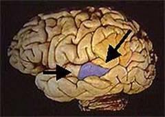 Синдром Корсакова: болезнь, симптомы, лечение, что это