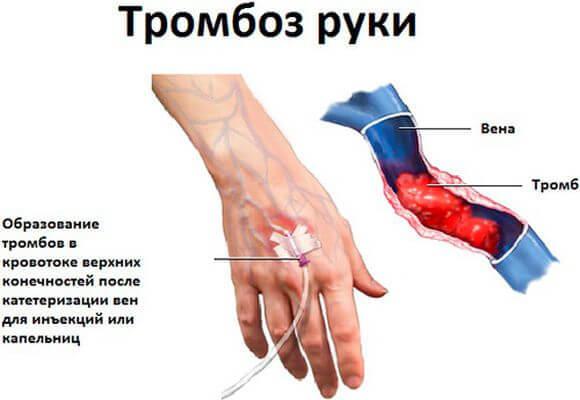 Флебит вены на руке: после катетера, лечение, воспаление