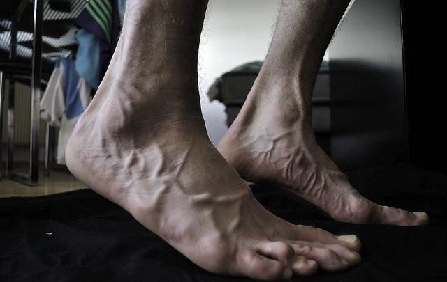 Нейропатия нижних конечностей: симптомы, лечение, препараты