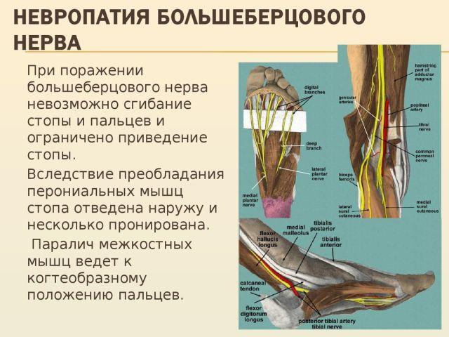 Нейропатия большеберцового нерва: травматическая, компрессионная
