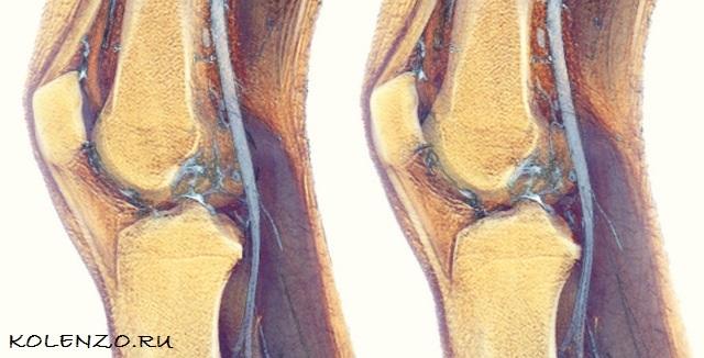 Синовит коленного сустава: симптомы, лечение, минимальный