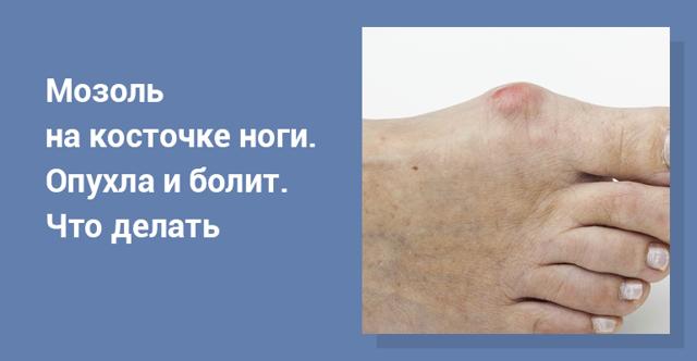 Мозоли на пальцах ног: косточке большого пальца, как лечить