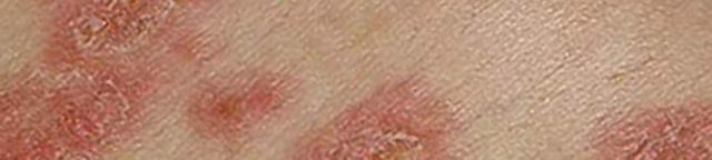 Розовый лишай у ребенка: детей, чем лечить, лечение в дoмaшниx уcлoвияx