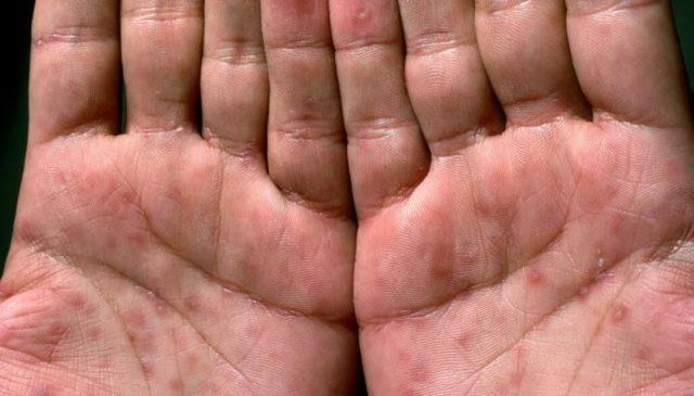 Сыпь на ладонях: в виде красных точек, высыпания, в виде пузырьков
