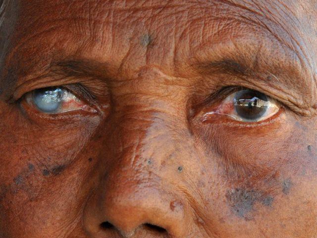 Инвалидность по зрению: как оформить, при заболевании глаз