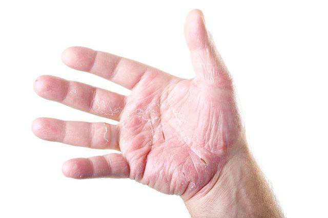 Сухость кожи рук: причины и лечение, трещины, крем, чем лечить